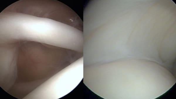 arthroscopie epaule paris docteur thomas waitzenegger chirurgie epaule chirurgie main chirurgie coude paris 16 longjumeau