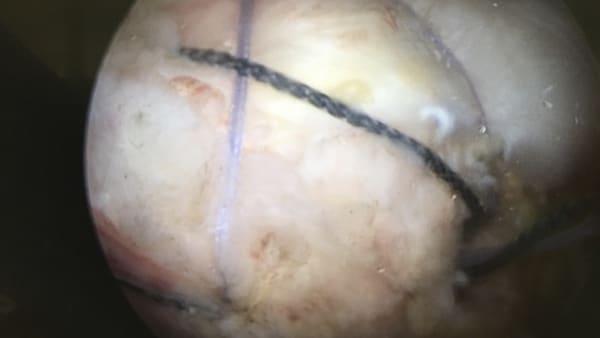 arthroscopie suture tendons coiffe rotateurs rupture calcification chirurgie de l epaule paris docteur thomas waitzenegger chirurgie epaule chirurgie main chirurgie coude paris 16 longjumeau 1