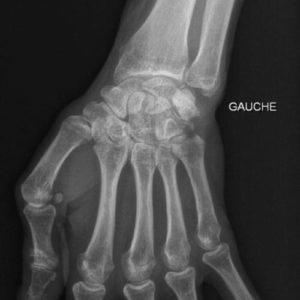 arthrose poignet chirurgie poignet paris docteur thomas waitzenegger chirurgie epaule chirurgie main chirurgie coude paris 16 longjumeau