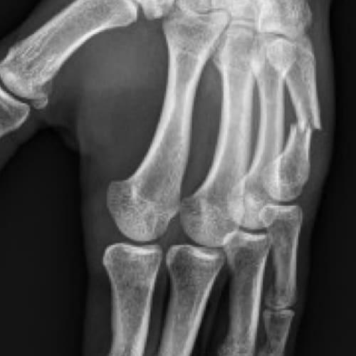 fracture metacarpe urgences main paris docteur thomas waitzenegger chirurgie epaule chirurgie main chirurgie coude paris 16 longjumeau