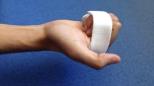 raideurs doigts attelle chirurgie main paris docteur thomas waitzenegger chirurgie epaule chirurgie main chirurgie coude paris 16 longjumeau