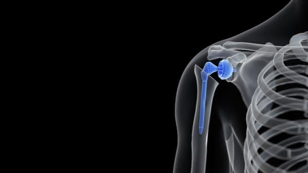 arthrose epaule omarthrose epaule chirurgie de l epaule paris docteur thomas waitzenegger chirurgie epaule chirurgie main chirurgie coude paris 16 longjumeau