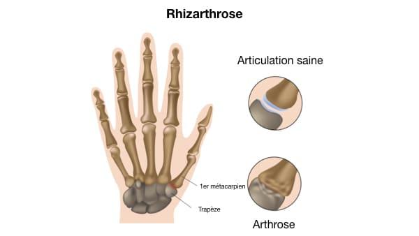 rhizarthrose pouce rhizarthrose traitement arthrose du pouce docteur thomas waitzenegger chirurgien de la main paris 16