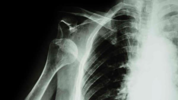 luxation epaule operation epaule deboitee que faire docteur thomas waitzenegger chirurgien epaule paris