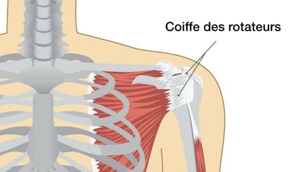 rupture coiffe des rotateurs symptomes fracture de l epaule chirurgien de l epaule paris longjumeau docteur thomas waitzenegger