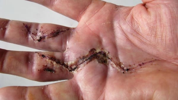 maladie dupuytren invalidite docteur thomas waitzenegger chirurgien orthopediste epaule paris chirurgien orthopediste main paris
